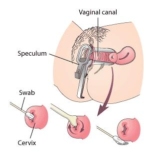 How does the vaginal speculum work